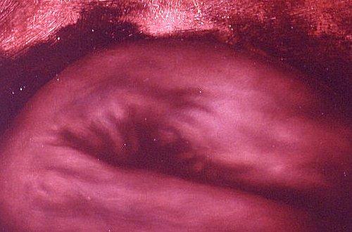Fetus – particolare 10